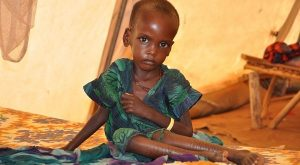 desnutricion-en-africa