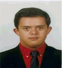 joven-down